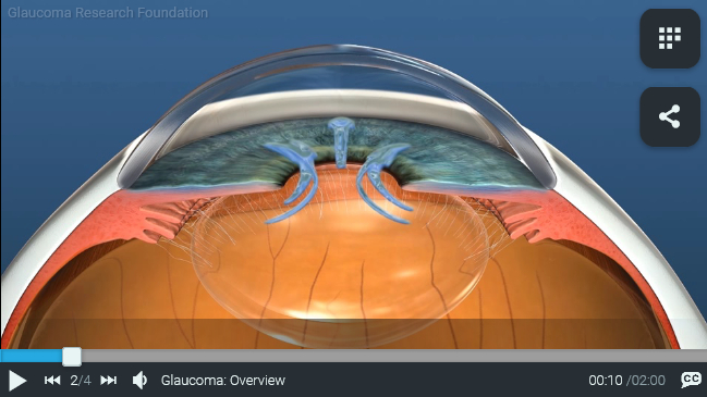 Glaucoma. Research Foundation